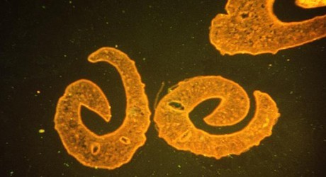 S. mansoni nematodes. Property of the Centers for Disease Control.